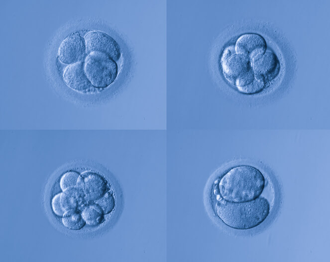 What is Preimplantation Genetic Screening in Surrogacy?